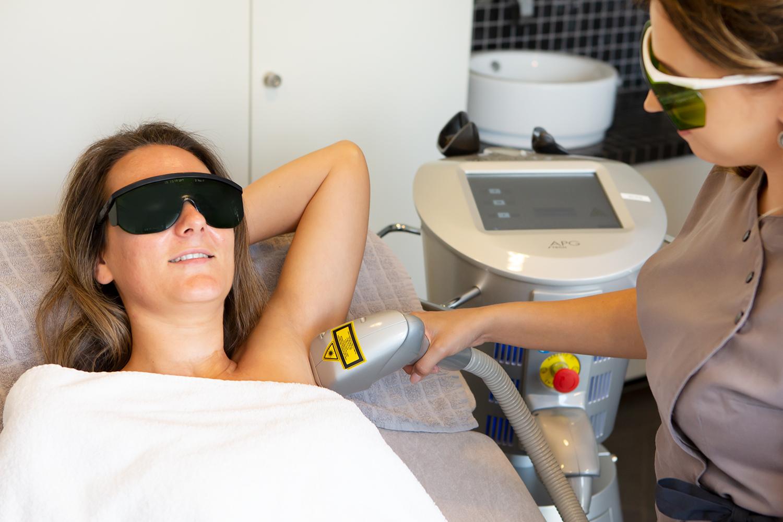 Laser ontharen bij Schoonheidssalon Sense for Beauty Zegge